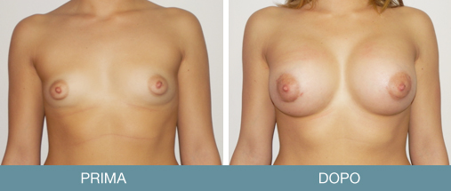 masto correttiva 2 mammella tuberosa