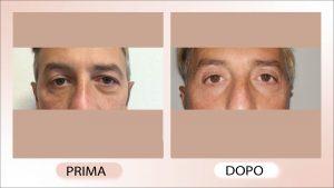 blefaroplastica - chirurgia estetica